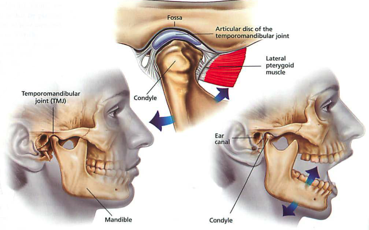 tmj-syndrome