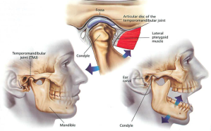 tmj-syndrome